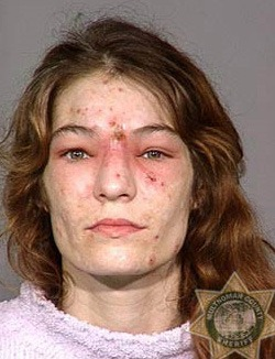 Faces of Meth: Before & After
