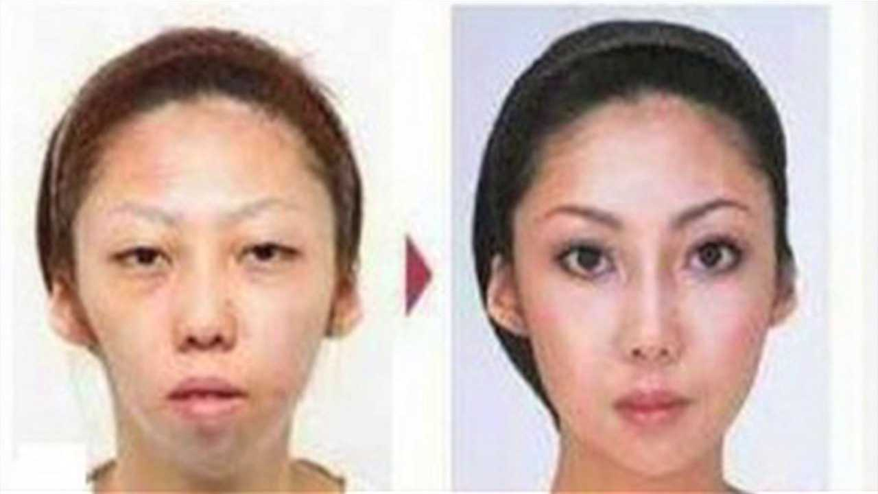 Both of these photos show Jian Feng's Chinese wife. The shot on the left shows her before she underwent $100,000 of plastic surgery, and the shot on the right shows her after those extensive procedures.