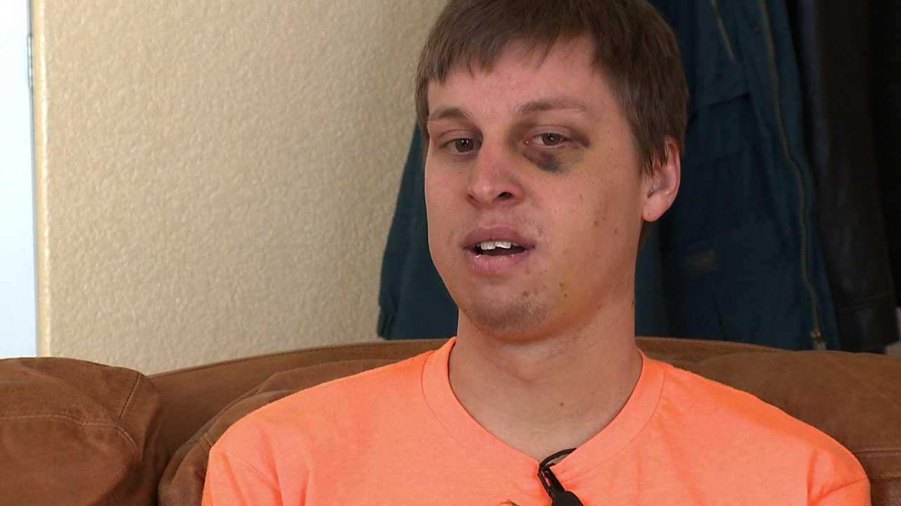 Nick Lloyd was attacked in lower downtown Denver New Year's Eve