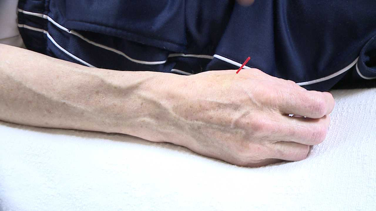 Acupuncture used for cancer treatment